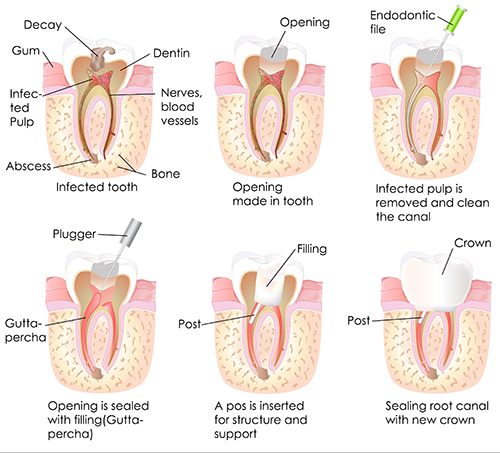 Root Canal in Caledonia