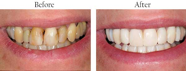 Dental Bleaching in Caledonia