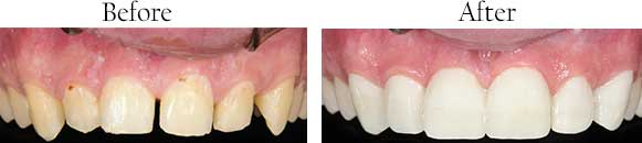 Composite fillings Caledonia