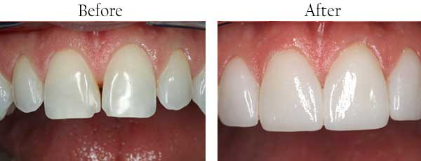 Dental Implants Caledonia